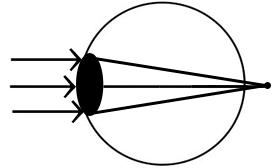 pinhole-hyperopia