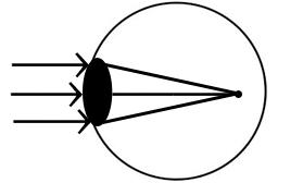 pinhole-myopia